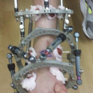 foot Deformity Correction Frame