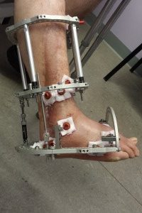 Ankle Fusion Frame